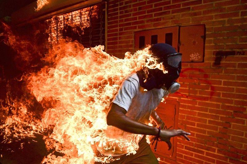 Crisis de Venezuela. Foto de prensa mundial del año. José Víctor Salazar Balza (28) incendiado en los violentos enfrentamientos con la policía en una protesta contra el presidente Nicolás Maduro / Foto: Ronaldo Schemidt (Venezuela)